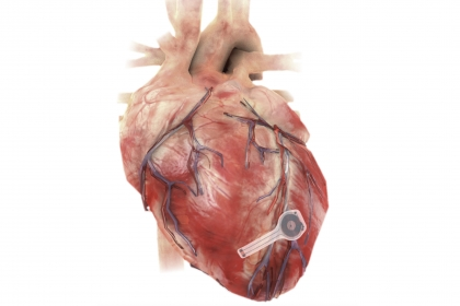 pacemaker on heart